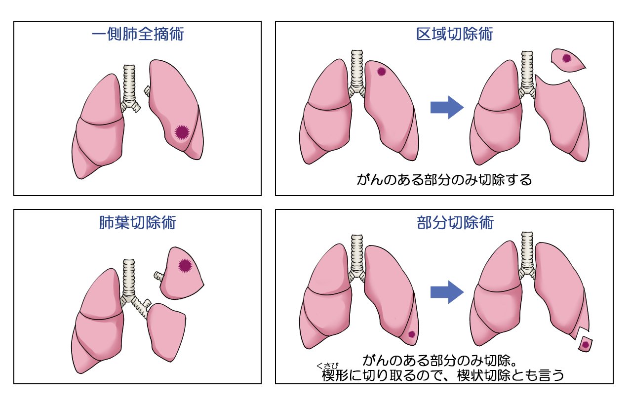 Lung sugery method